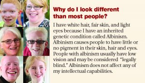 NAOH Albinism Business Card