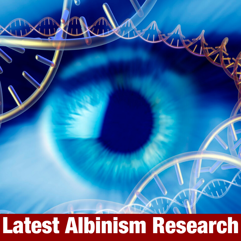Latest Albinism Research