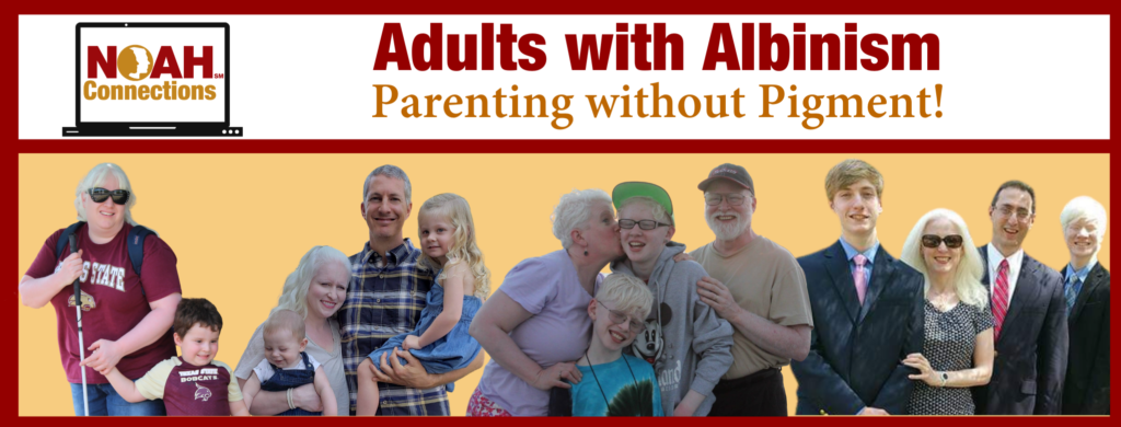 NOAH Connections Adults with Albinism Parenting without Pigment