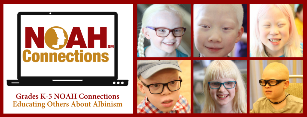 Grades K-5 NOAH Connections Educating Others About Albinism