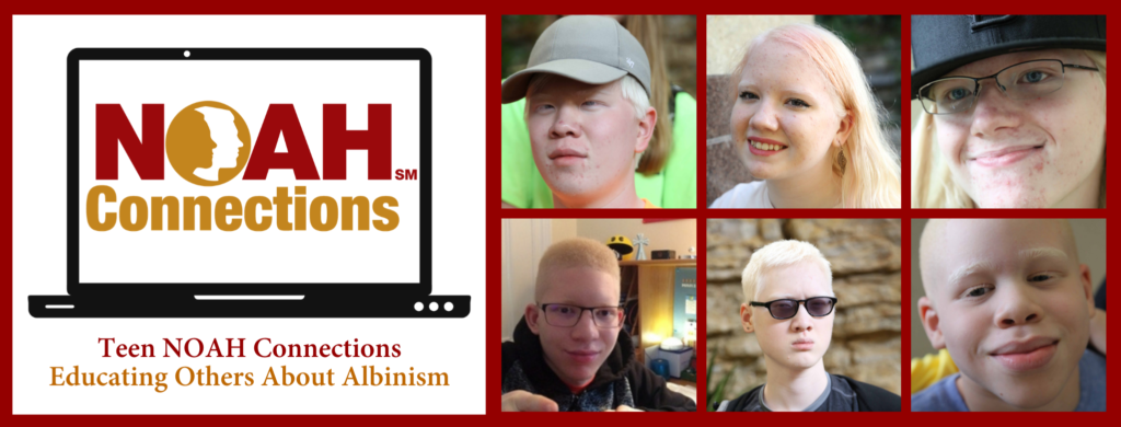 Teen NOAH Connections Educating Others About Albinism